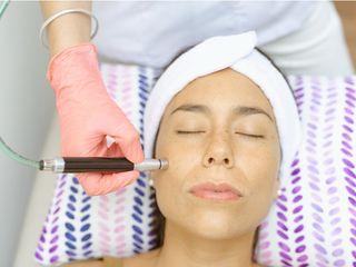 Tratamientos faciales - rejuvenecimiento facial