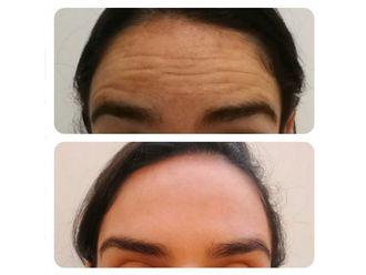 Botox-634932