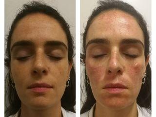 Tratamientos faciales - Manchas en la piel con Láser Harmony