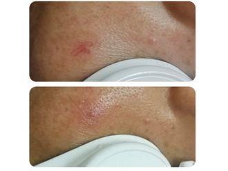 Rejuvenecimiento facial-635839