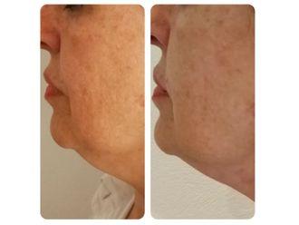 Rejuvenecimiento facial-645277