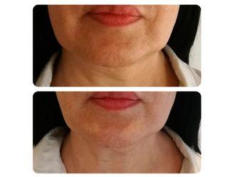 Rejuvenecimiento facial-645278