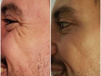 Botox-647429