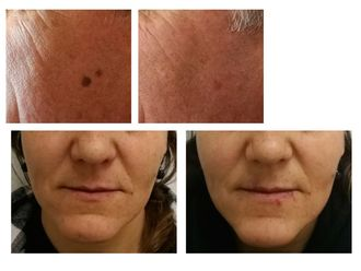 Dermatología Estética-662611