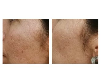 Eliminar cicatrices-662613