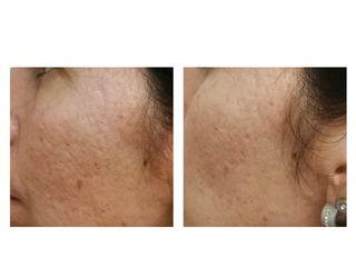 Secuelas de acné con Láser Harmony