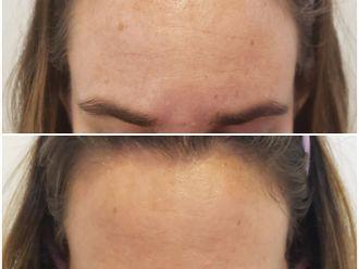 Dermatología Estética-698954