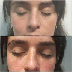 Ácido hialurónico en ojeras - Medvital