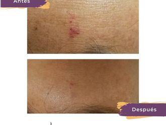 Dermatología Estética-738935