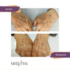 Manchas de la piel - Medvital