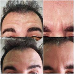 Botox - Medvital