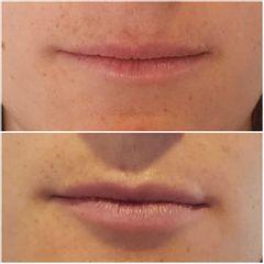 Relleno de labios - Medvital
