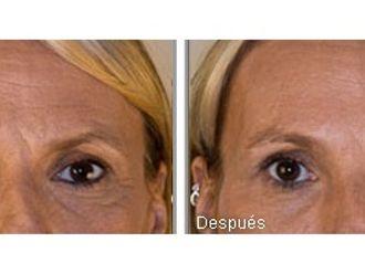 Rellenos faciales-346017