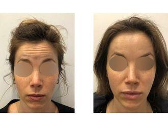 Botox-793528