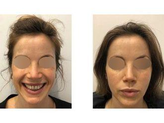 Botox-793529