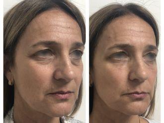 Botox-793686