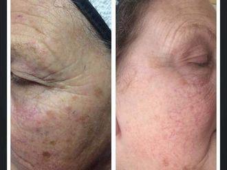 Botox - 611670