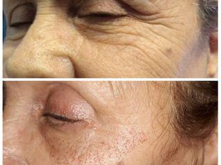 Blefaroplastia no Quirúrgica