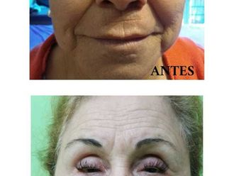 Rejuvenecimiento facial-646483