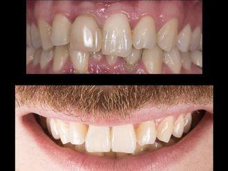 Prótesis dentales-581801
