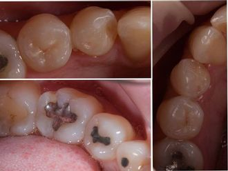 Prótesis dentales-581802