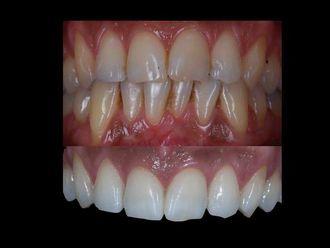 Blanqueamiento dental-582261