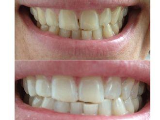 Blanqueamiento dental-488477