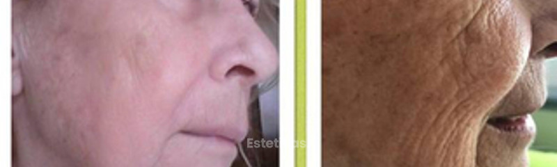 Antes y despues de plasma gel
