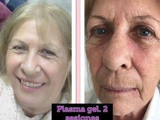 Plasma Rico en Plaquetas-597952