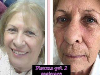 Antes y despues de plasma gel