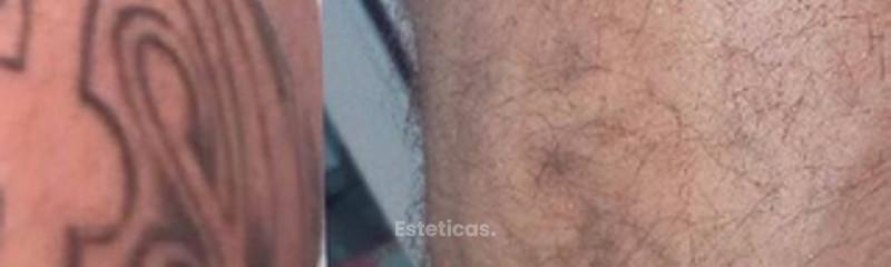 Borrar Tatuajes Experiencias Precios Doctores Fotos Y Más