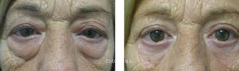 Tratamiento bolsas en los ojos