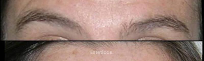 Botox . Dra. Marisol López
