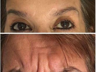Rejuvenecimiento facial - 630478