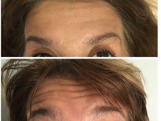 Rejuvenecimiento facial - 630479