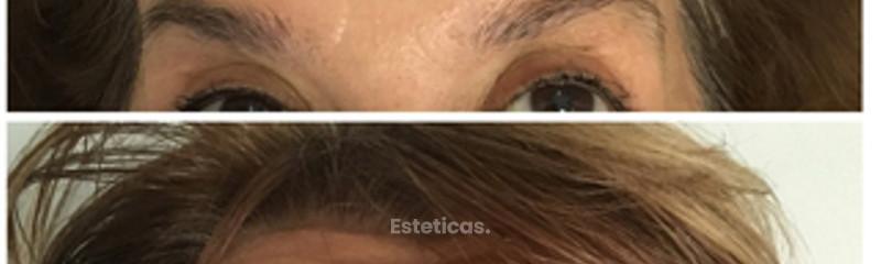 Botox frente