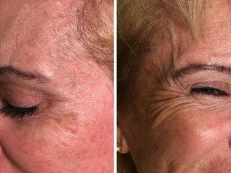Rejuvenecimiento facial - 630480