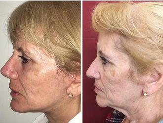 Rejuvenecimiento facial - 630481