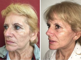 Rejuvenecimiento facial - 630482