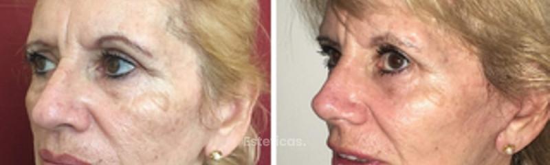 Lifting facial y cervical, rinoplastia y mentoplastia