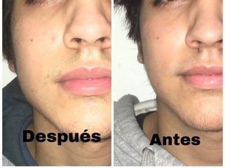 Marcación perfil mandibular - Dr. Martín Salas