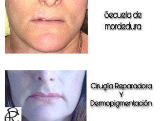 Cirugía maxilofacial-688228