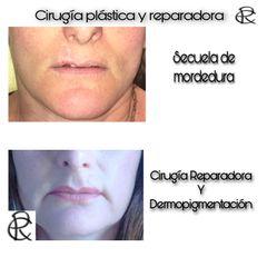 Reconstrucción labio - Dr. Martín Salas