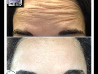 Botox-693966
