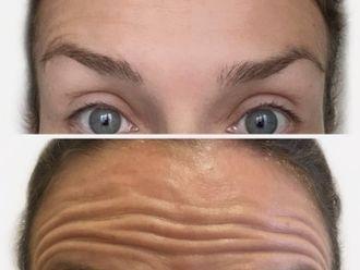 Botox-693969