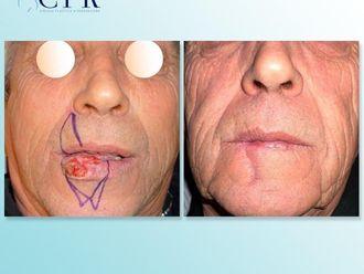 Cirugía maxilofacial-741802