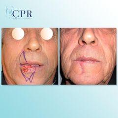 Cirugía maxilofacial - Dr. Martín Salas