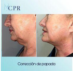 Liposucción - Dr. Martín Salas