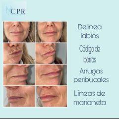 Rellenos faciales - Dr. Martín Salas
