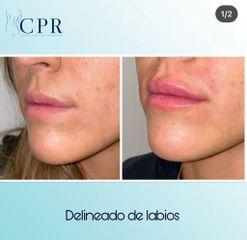 Relleno de labios - Dr. Martín Salas